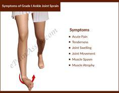 Symptoms of Grade I Ankle Joint Sprain