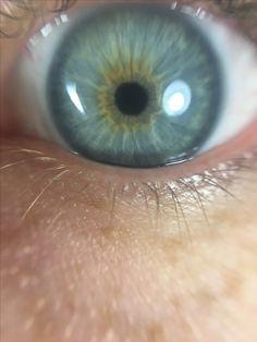 Bright Spring eye