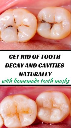reverse tooth decay + tooth decay + tooth decay remedies + tooth + tooth ache relief - a pinch of salt 2 drops clove essential oil ¼ tsp organic coconut oil ¼ tsp turmeric powder Get rid of tooth decay and cavities naturally with these homemade tooth ma Teeth Health, Healthy Teeth, Oral Health, Baby Tooth Decay, Tooth Decay In Children, What Causes Tooth Decay, Reverse Cavities, Remedies For Tooth Ache, Receding Gums