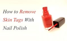 Remove SKIN TAGS by painting clear nail polish on them twice a day until they disappear. Click here for more information. This method also works for removing WARTS.