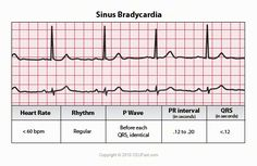 ECG Interpretation - 16 Sinus Bradycardia
