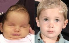 Craniosynostosis Causes, Symptoms, Diagnoses and Treatment