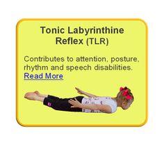 Retainted Tonic Labyrinthine Reflex