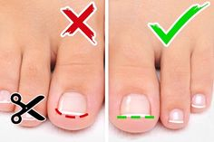 6 Tips for Foot and Nail Care Thick Toenails, Foot Soak Recipe, Natural Gel Nails, Ingrown Toe Nail, Manicure Y Pedicure, French Pedicure, Feet Nails, Pastel Nails, Gel Nail Designs