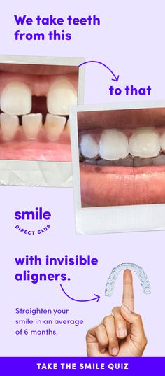 SmileDirectClub invisible aligners straighten your teeth completely from home and for less than half the price of other competing systems. Health Tips, Health And Wellness, Health And Beauty, Teeth Care, Skin Care, Tatoo Tree, Teeth Straightening, Gewichtsverlust Motivation, Oral Hygiene