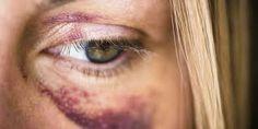 domestic violence - Google Search
