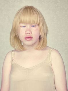 An artist has captured a hauntingly beautiful set of pictures of men, women and children with albinism. Gustavo Lacerda has been photographing people with albinism, who are distinctive for their pale. Albino Men, Modelo Albino, Melanism, Photographs Of People, Photo Series, Woman Face, Eye Color, Foto E Video, Beautiful People