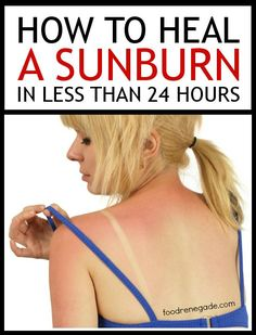 How To Heal A Sunburn In Less Than 24 Hours.