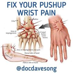 Hip Pain Relief, Shoulder Pain Relief, Wrist Pain, Ankle Pain, Elbow Pain, Plyometrics, Calisthenics, Yoga Poses For Beginners, Workout Programs