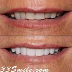 Our patient wanted to brighten up her smile and make it more symmetrical to which we said It would be our pleasure! ..this case was achieved through veneers. #drjamsmiles #33Smile . . All photos and video of patients are of our actual patients. All media is the of Cosmetic Dental Associates. Any use of media contained herein is prohibited without written consent. . . #satx #satxdentist #dentistry #goals #smile #teeth #instagoals #transformationtuesday #beforeandafter #whiteteeth #perfect #tran Smile Teeth, Her Smile, Insta Goals, Dental Cosmetics, Dental Procedures, Cosmetic Dentistry, Transformation Tuesday, Beautiful Smile, Photo And Video