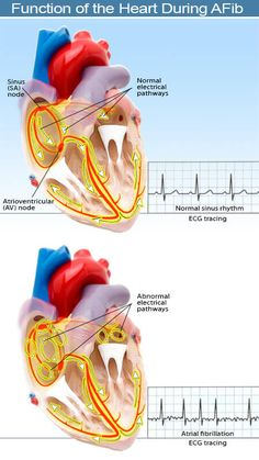 Ventricular Tachycardia, Atrial Fibrillation, Normal Heart Rate, Heart Procedures, Atrial Flutter, Cardiac Nursing, Nursing School Notes, Color, School