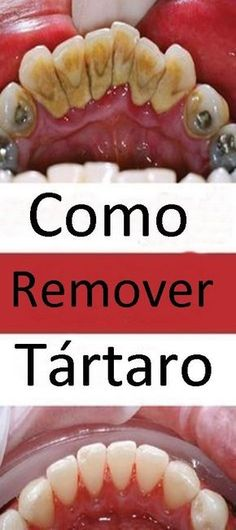 The mineral accumulation on teeth is called tartar. The amount of tartar increases in time and you should take care of it in order to prevent the occurrence of periodontitis. Calendula Benefits, Matcha Benefits, Coconut Health Benefits, Tomato Nutrition, Stomach Ulcers, Ketogenic Diet For Beginners, Healthy Oils, Healthy Teeth, Oral Health