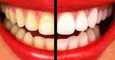 Découvrez cette recette naturelle et efficace pour blanchir vos dents en 2 minutes seulement. Effet garanti...