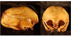 Alargado Skulls en el útero - Morton Colección