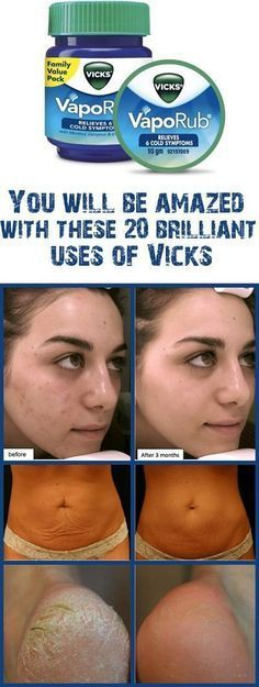 Remedies For Skin Vicks VapoRub is commonly used in the treatment of headaches, cold, cough, stuffy nose, throat and chest. We have some more good news for you. Vicks VapoRub is even more powerful than this. Health And Beauty Tips, Health Tips, Health And Wellness, Usa Health, Wellness Tips, Uses For Vicks, Vicks Vaporub Uses, Pedicures, Tips Belleza