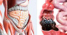 Para alguns terapeutas naturalistas, os intestinos são o ponto de apoio de todas as enfermidades.Diante disso, o tratamento de rejuvenescimento ou voltado para a restauração da saúde e da vida deve começar pela limpeza dos intestinos, que pode ser feita periodicamente.