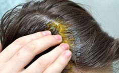 Beyaz Saçlar için Soğan Kürü uygulayarak yaşlanmanın belirtileri olan beyaz saçlar doğal rengine döndürülebilir.