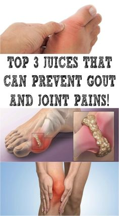The small crystals that usually form inside and around the joints are known as gout, which is a form of arthritis. This condition can cause serious pain and swelling and can affect your daily activities. The attacks Health And Beauty Tips, Health Tips, Health Care, Beauty Tricks, Gout Remedies, Health Remedies, Home Remedies For Gout, Natural Remedies, Home Remedies