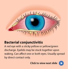 Pink eye, or conjunctivitis, is often highly contagious. Click to learn about the different types of pink eye and how to prevent them.