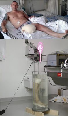 After having his right leg amputated as a result of a complicated fracture, Leo Bonton, with the help of pathologist Frank van de Goot, is having his limb made into a lamp. Bonten has already...