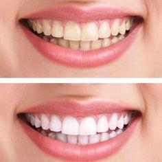 Statt Zahnpasta: Dieses Hausmittel macht eure Zähne weißer   BRIGITTE.de