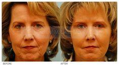 Skin Resurfacing - Skin Resurfacing Procedure Photos By Dr Samuel Lam Plastic Surgery Photos, Skin Resurfacing, Facial Rejuvenation, Chemical Peel, Your Skin, Photo Galleries, How To Remove