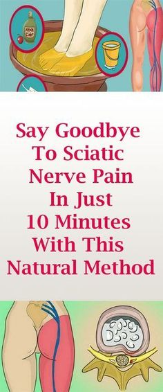 Pain Remedies Say Goodbye To Sciatic Nerve Pain In Just- 10 Minutes With This Natural Method Sciatica Pain Relief, Sciatic Pain, Headache Relief, Siatic Nerve, Nerve Pain, Sciatica Pregnancy, Sciatica Exercises, Natural Headache Remedies, Natural Remedies