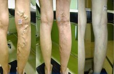 homemade-remedy-varicose-veinsveins-768x504
