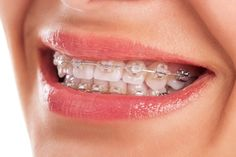 Invisalign for the price of braces!