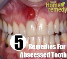 An abscessed tooth is an inflamed and sore bacterial infection in your gums. The main causes of an abscessed tooth are – tooth decay, gum ...