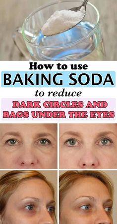Reduce Dark Circles, Dark Circles Under Eyes, Dark Under Eye, Dark Spots Under Eyes, Baking Soda Under Eyes, Baking Soda Dark Circles, Baking Soda And Lemon, Baking Soda Uses, Diy Beauty Hacks