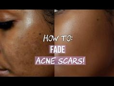 Leave your favorites in the comment section!How To Get Rid Of Forehead Acne Scars Acne Face Wash, Body Acne, Youtubers, Sensitive Acne Prone Skin, Skin Brushing, Scar Treatment, Skin Treatments, Acne Scar Removal, Spots On Face