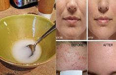 Say Goodbye To Wrinkles And Sagging Facial Skin After Washing It With This Powerful Mixture!