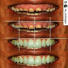 #dentistry #dentist #dental #teeth #tooth #smile #odontologia #dentista #periodontology #stomatolog #odontology #smilemakeover #wisdomteeth #dentalstudent #dentalstudents #dentalfaculty #toothpaste #toothbrush #stomatologija #dentalfaculty#odonto #ortodonzia #odontologia #oralsurgery #odontoiatria #dentista #veneers #veneer #crowns #periodoncia by dailydoseofdentistry Our Oral Surgery Page: http://www.myimagedental.com/services/oral-surgery/ Google My Business…