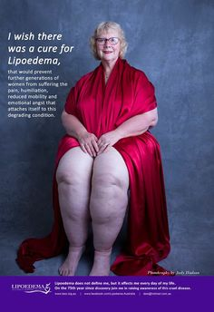 The Well-Rounded Mama: Lipedema, Part 5d: Alternative Medicine Treatments