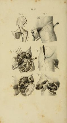 PL. XXVII. Amputation of the hip-joint.   Illustrated manual of operative surgery and surgical anatomy by Bernard, Claude, 1813-1878 (https://www.pinterest.com/pin/287386019945557319/); Huette, Ch. (Charles); Van Buren, W. H. (William Holme), 1819-1883; Isaacs, C. E. (Charles Edward), 1811-1860. Published 1855 (https://www.pinterest.com/pin/287386019949720406/).
