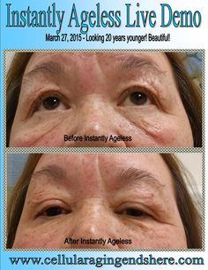 My cousin Linda! Instantly Ageless is a breakthrough product and WOW, I am loving it and making great money as I change lives two minutes at a time! Watch my 2 minute video: www.doyouknowsomeonewithaface.com