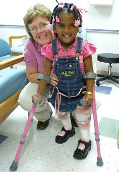 spina bifida - Google Search