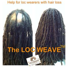 Help for loc wearers with hair loss.