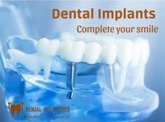 22 Best Meraki Dental Studio - Dental Checkup Clinic South Delhi