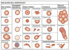 Summary of red blood cellsmorphology                                                                                                                                                      More