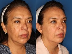 Medical Grade Chemical Peels at Laser Clinique helps hyper-pigmentation, melasma, discoloration and variety of other skin irregularities.