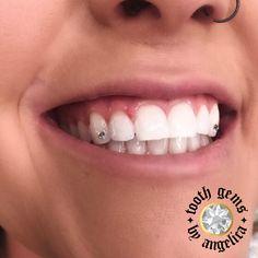 Diamond Teeth, Tooth Diamond, Halo Tattoo, Tooth Gem, Grills Teeth, Oily Skin Treatment, Jordan Shoes Girls, Gold Teeth, Makeup Needs