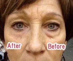Where Can I Buy Jeunesse Instantly Ageless Eye Cream ? Come to Our Official Website and You Could Buy Best Jeunesse Instantly Ageless Anti Aging Eye Cream, Under Eye Bags, You Look Beautiful, Puffy Eyes, Revolutionaries, Get Started, Anti Aging, Messages, Youtube, Things To Sell