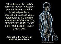 Rossz testtartás=  bélrendszeri problémák, aranyér, visszér, a csontritkulás, a csípő és a láb deformitások, a rossz egészségi állapot, csökkent életminőség, és a rövidebb élettartam.Journal of the American Medical Association