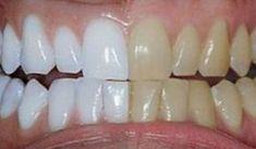 Unbelievable Tips: He mixed 2 ingredients and passed .- Dicas Inacreditáveis: Ele misturou 2 ingredientes e passou nos dentes. O… Unbelievable Tips: He mixed 2 ingredients and brushed his teeth.