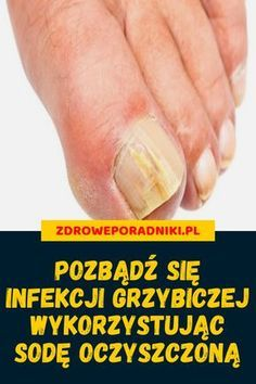 Grzybica paznokci Natural Cold Remedies, Herbal Remedies, Healing Herbs, Natural Healing, Benefits Of Exercise, Health Benefits, Lower Blood Pressure, Health Education, Herbalism