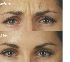 #BOTOX® Cosmetic is a prescription medicine that is injected into muscles and used to improve the look of moderate to severe frown lines between the eyebrows (glabellar lines) in adults for a short period of time (temporary).Contact us (954) 783-2323 for more details