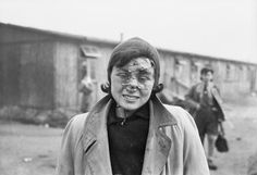 THE LIBERATION OF BERGEN-BELSEN CONCENTRATION CAMP, APRIL 1945. A young woman photographed two days after the British entered the camp; her face still bearing the scars of a terrible beating by the SS guards.
