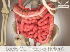Leaky Gut - Fact or Fiction?